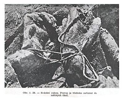 Способ связывания рук. Веревка глубоко врезалась в мягкие ткани.